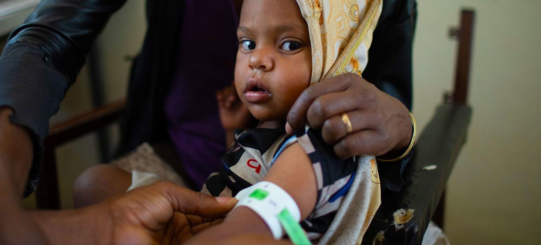 Niño en consulta por desnutrición en un centro de salud en Tigray, Etiopía.