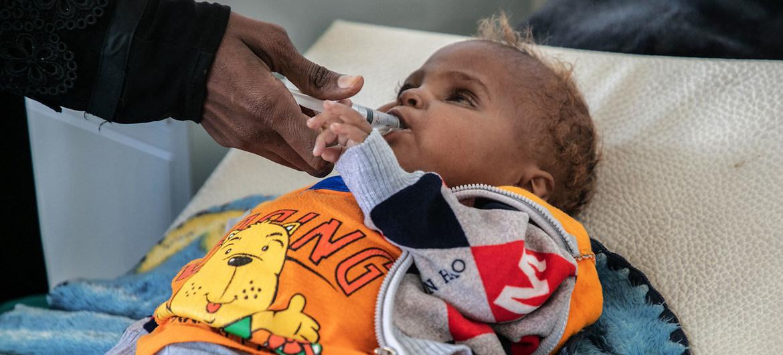 Un bebé de 18 meses, que perdió un ojo por una enfermedad, es tratado en un hospital de Saná, en Yemen